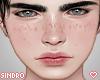 皮膚. Shiro Freckles.