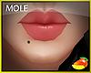 Mole lower lip right