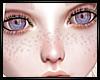 REQ Nemie Albino Freckle