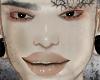 disorder skin