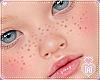 Kid Freckles Medium