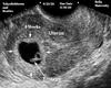 Custom Ultrasound Pic