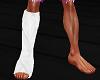 LEG PLASTER CAST -Right