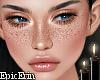Natural Freckles