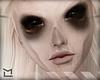 ² Skin of Famine