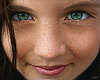 Skins - Freckled Cutie