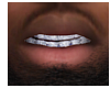 Icey VVS Diamond Grillz