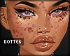 acne w/ scars full face