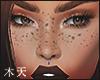 ☯ Freckles.