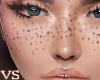 {VS} Darken Freckles