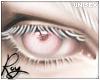 Albino Eyes