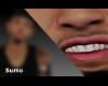 $ White Teeth