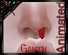*G* Nosebleed! >.< M