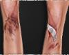 [A]Bruised Knees