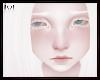 Albino Wendle