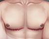 .FTM. top surgery II