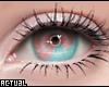 Heterochromia Blue/Pink